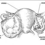 Asbestos-Linked-Ovarian-Cancer-1