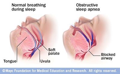 The Cause and Effect of Sleep Apnea During Sleep